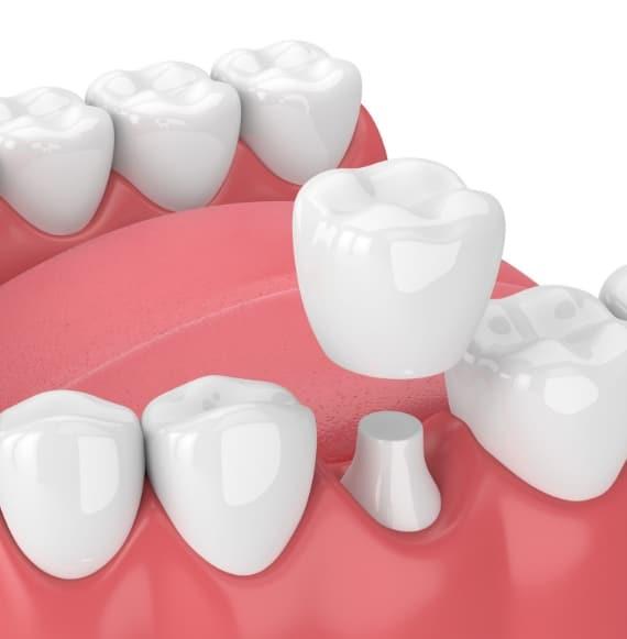 Dental Crowns -