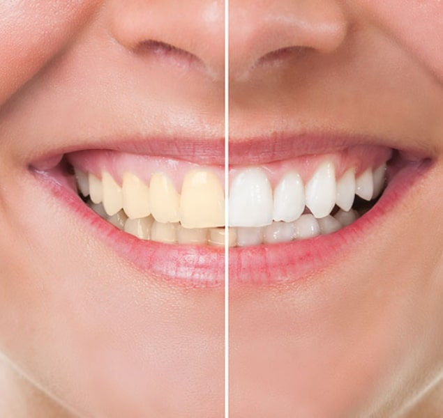 At Home Teeth Whitening -