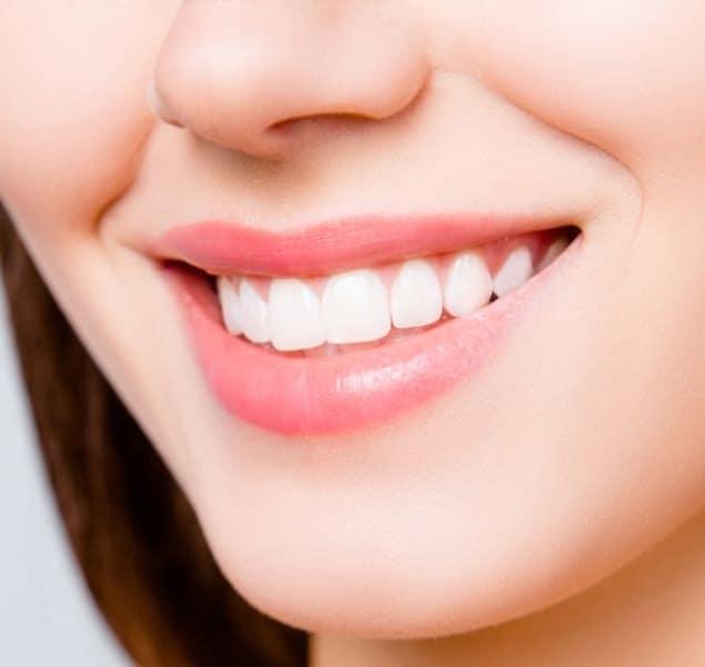 Dental Bonding -