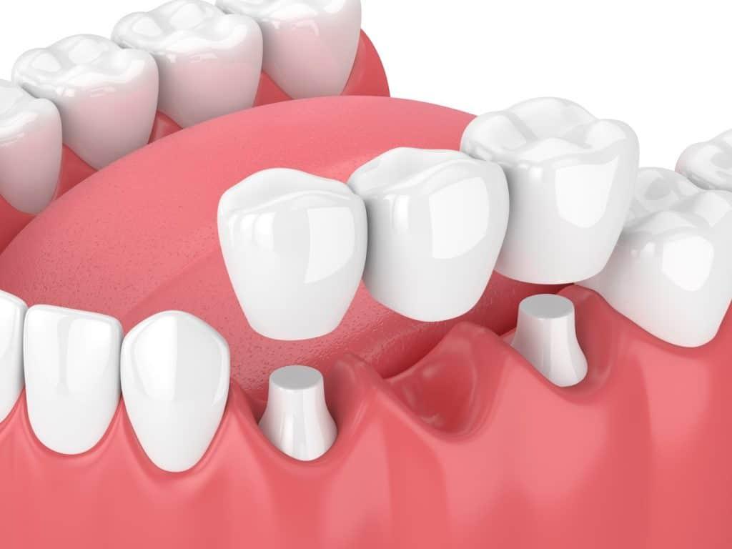 Dental Bridges - Wodonga Family Dental Clinic