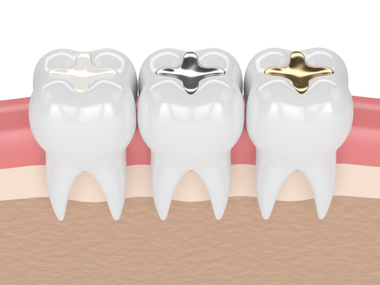 Dental Fillings - Wodonga Family Dental Clinic