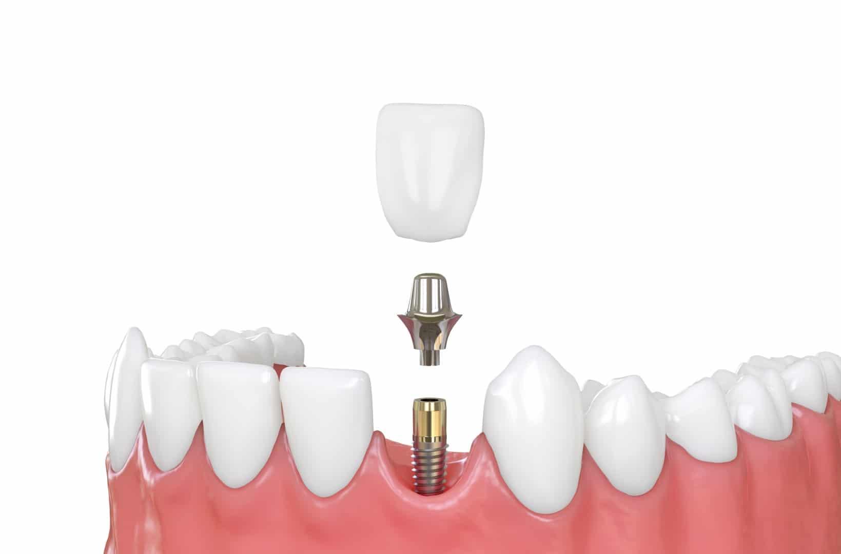 Dental Implants - Dental Care Services - Wodonga Family Dental Clinic