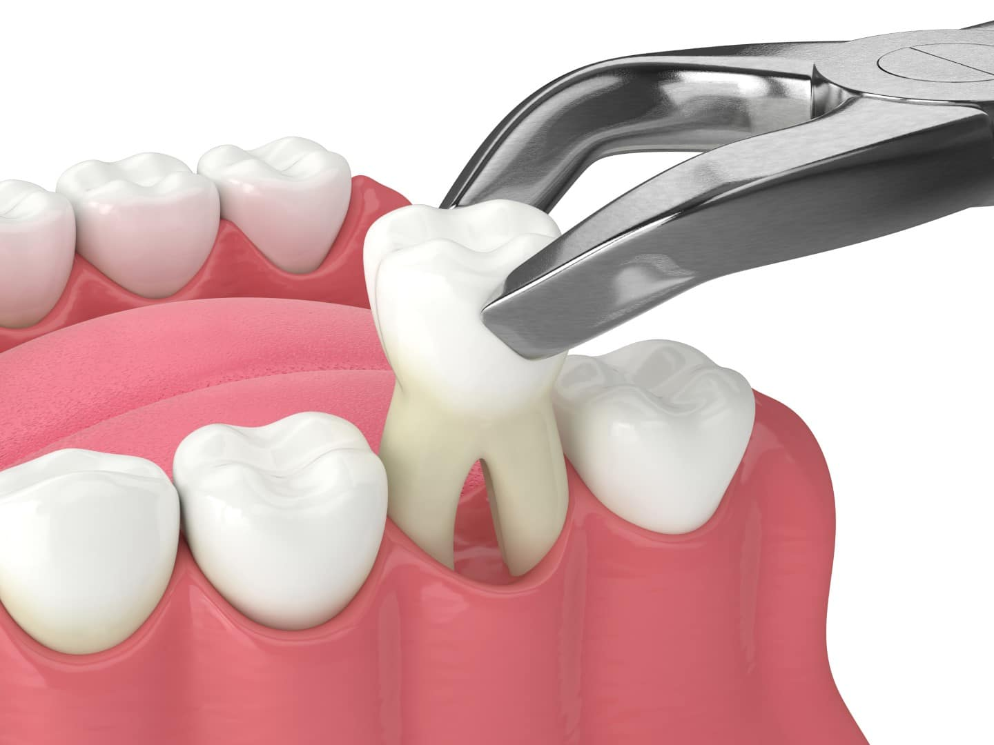 Dental Extractions - Dental Care Services - Wodonga Family Dental Clinic