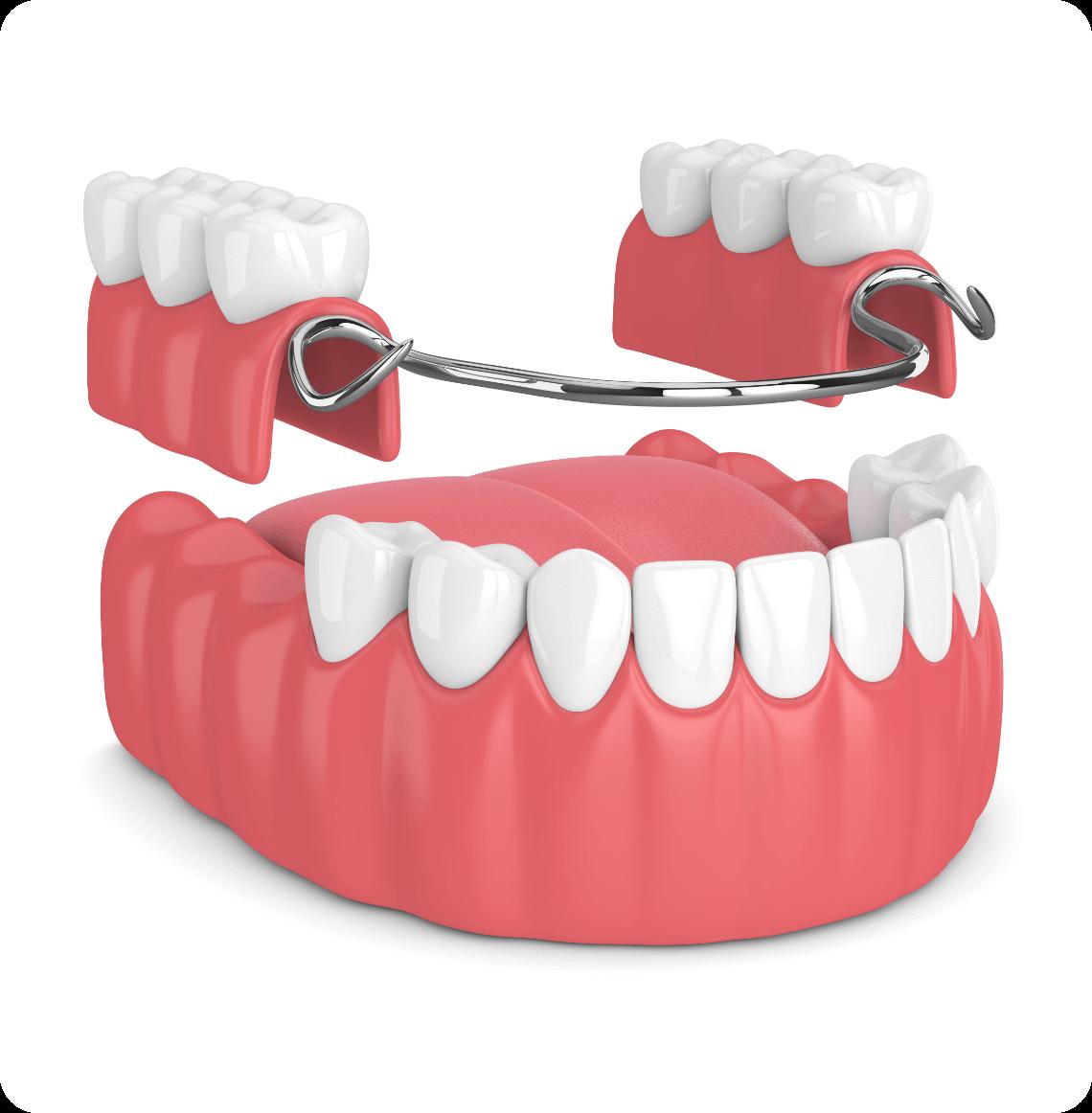 Removable Partial Dentures -