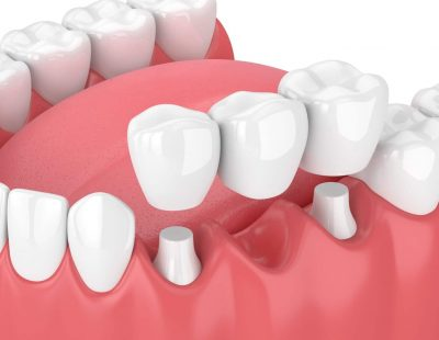 3d,Render,Of,Jaw,With,Dental,Bridge,Over,White,Background
