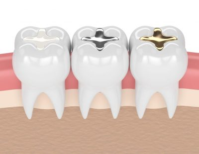 3d,Render,Of,Teeth,With,Gold,,Amalgam,And,Composite,Inlay