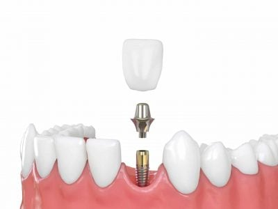 Jaw,Model,Tooth,Implant,3d,Illustration