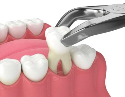 3d,Render,Of,Lower,Jaw,With,Tooth,Extracted,By,Dental