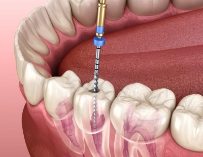 Endodontic,Root,Canal,Treatment,Process.,Medically,Accurate,Tooth,3d,Illustration.